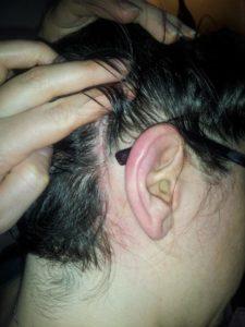 Post Acupuncture